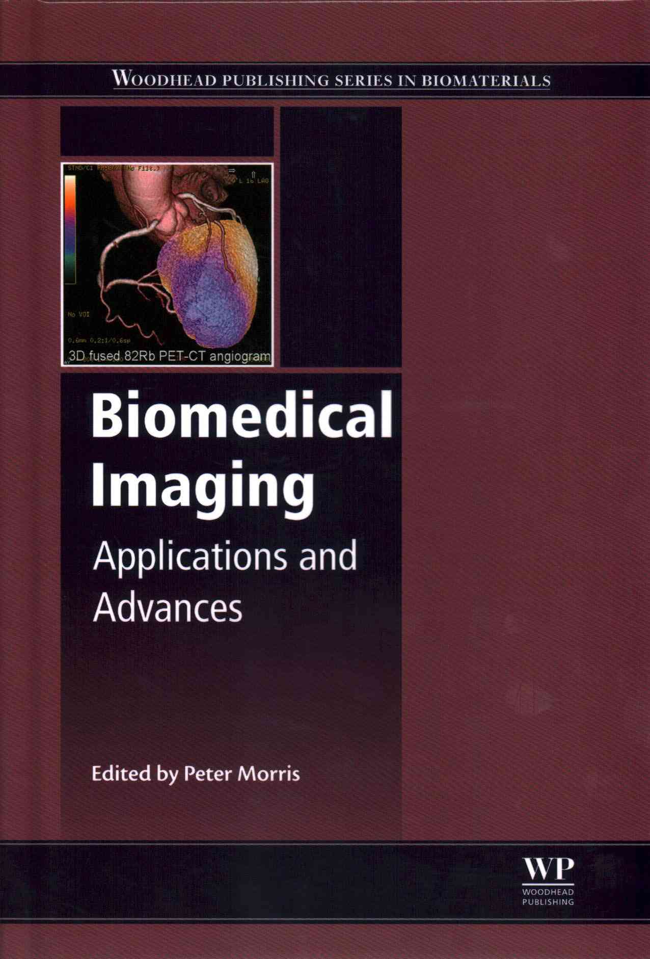 Biomedical Imaging By Morris, Peter (EDT)